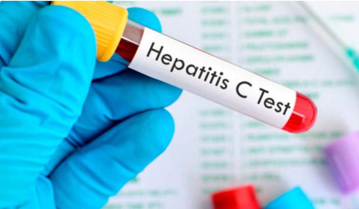 MÉXICO ANUNCIA EL PRIMER PROGRAMA DE ELIMINACIÓN DE LA HEPATITIS C EN AMÉRICA